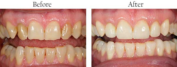Honolulu Before and After Dental Crowns